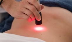 Laserterapia: indicazioni terapeutiche