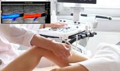 Ecocolordoppler arterioso e venoso: quando si esegue?