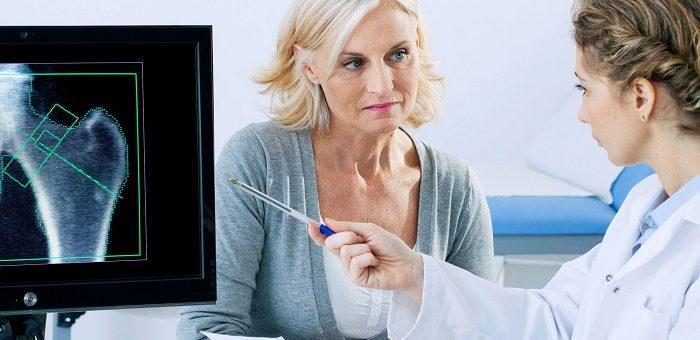 Osteoporosi: prevenirla, riconoscerla, curarla